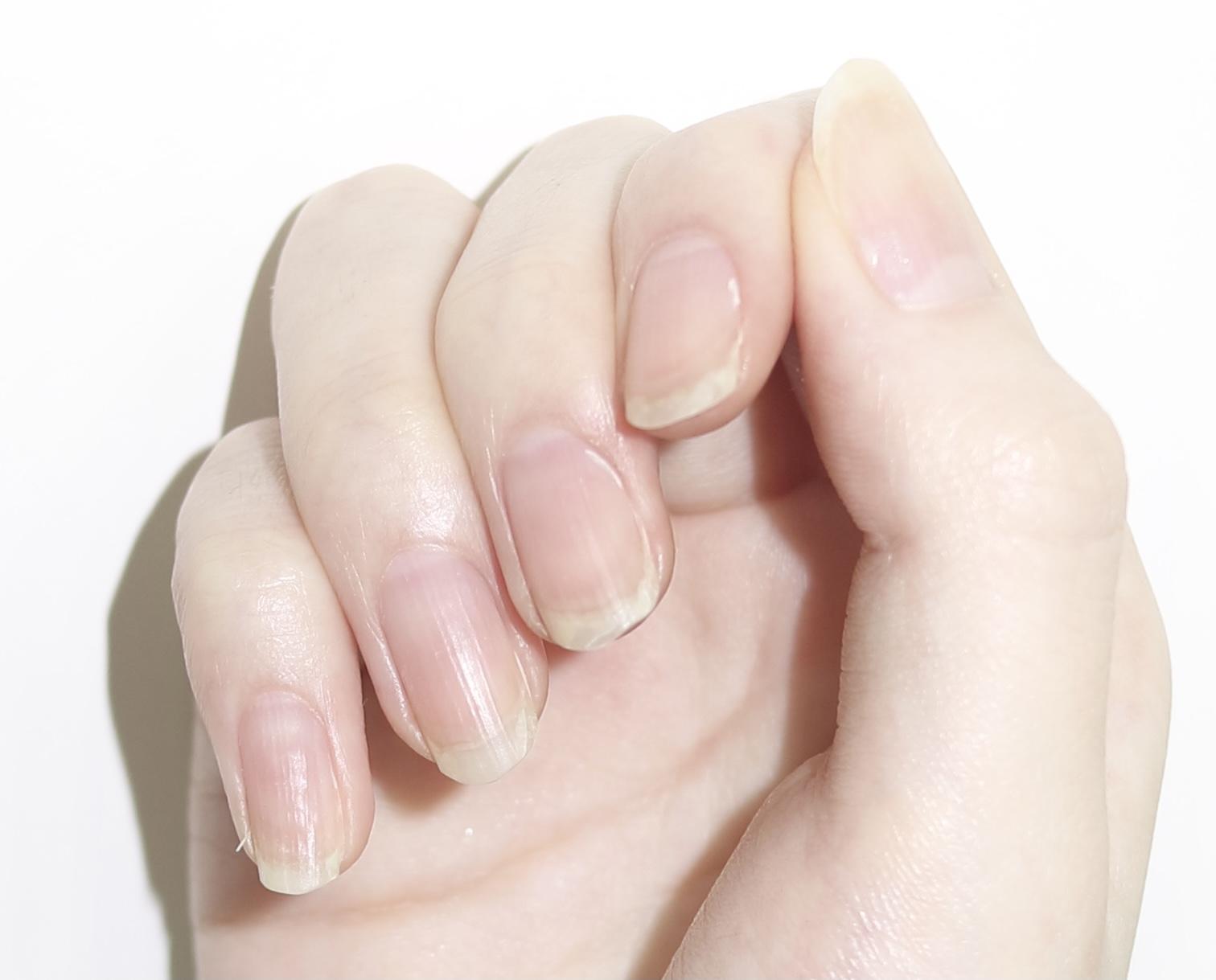 入る 爪 線 に 黒い が 爪の縦線が子供にできた!どうすれば治るの!?