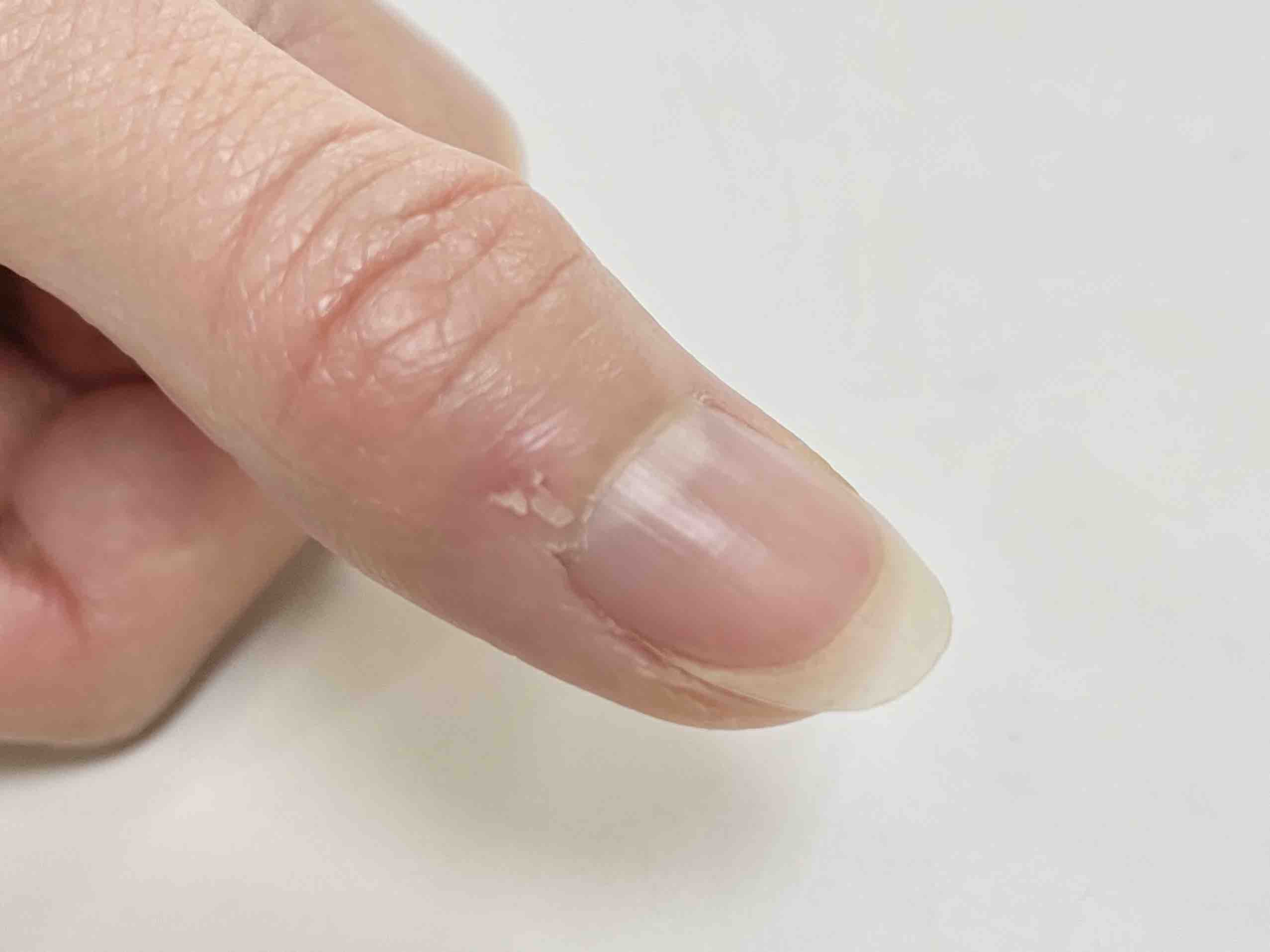 指 ささくれ 腫れ
